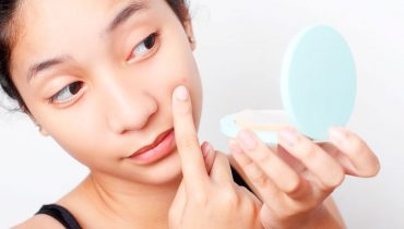 TOP INGREDIENTES CONTRA EL ACNE EN KBEAUTY (I)